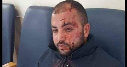 Settlers violently beat Palestinian bus driver in al-Khalil