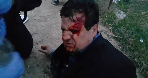 Join list slams police violence in the village ...Two Arab MKs injured by Israeli police in Umm al-Hiran events
