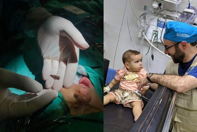 US Medical Team Removes Bullet from Palestinian Baby's Head