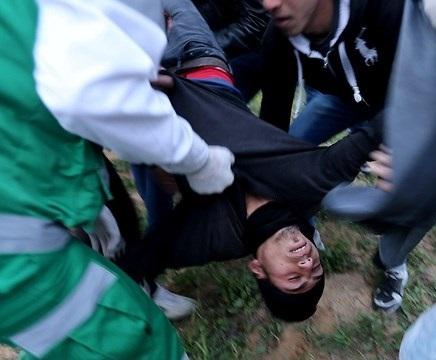 Minor among 20 injured during Gaza protests