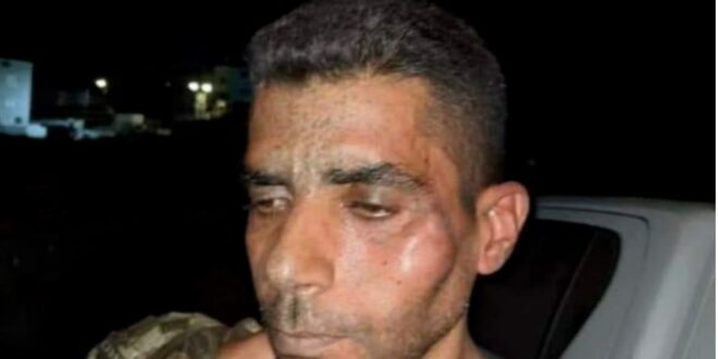 Zubeidi was severely beaten after his arrest, suffers broken ribs, says commission